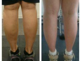 脚ダイエットの変化