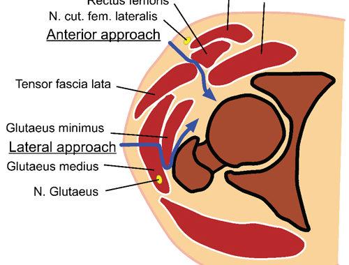 股関節上からの断面図