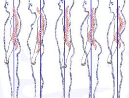 Posture_types_(vertebral_column)