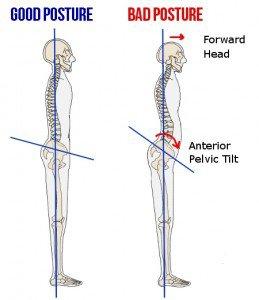 anterior-pelvic-tilt1-259x300