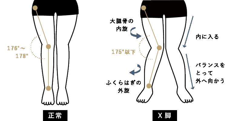 X脚の状態チェック
