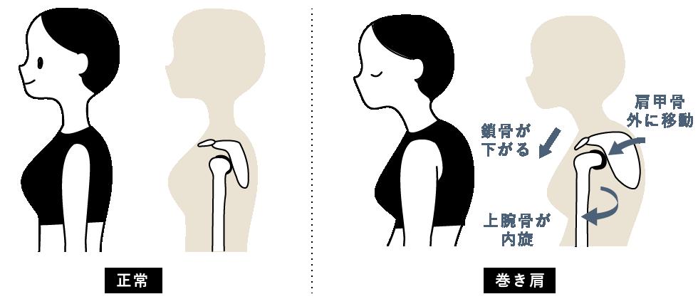 巻き肩の状態チェック